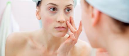 肌の赤みに効くスキンケア人気ランキング。おすすめの洗顔料&化粧水とは